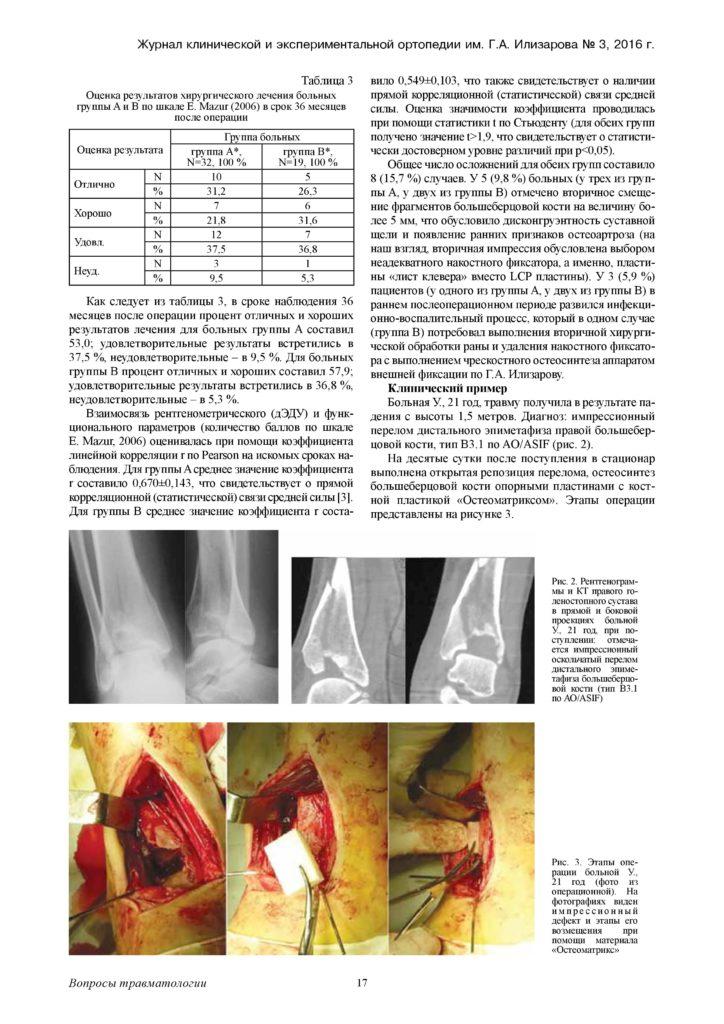 augmentaciya-kostnyx-defektov-distalnogo-otdela-page-3