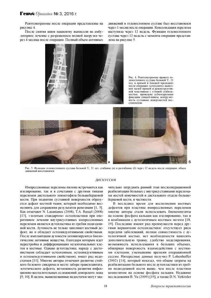 augmentaciya-kostnyx-defektov-distalnogo-otdela-page-4