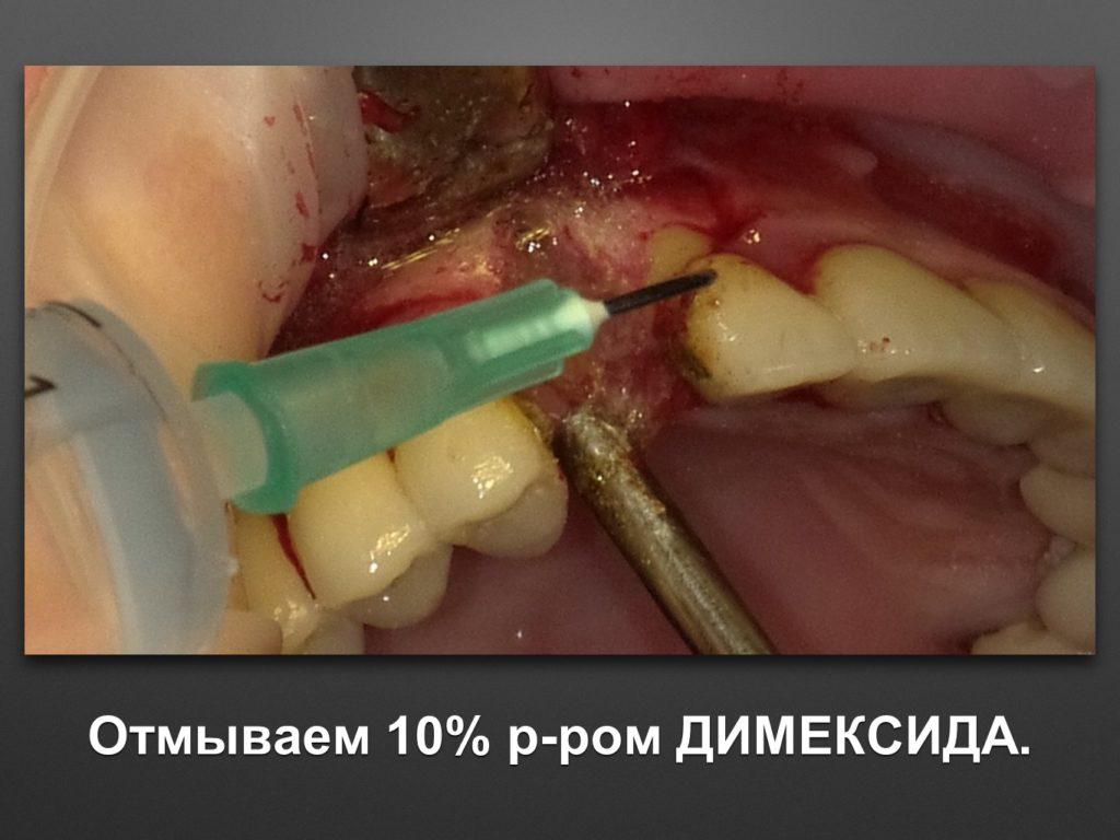 13-implantaciya