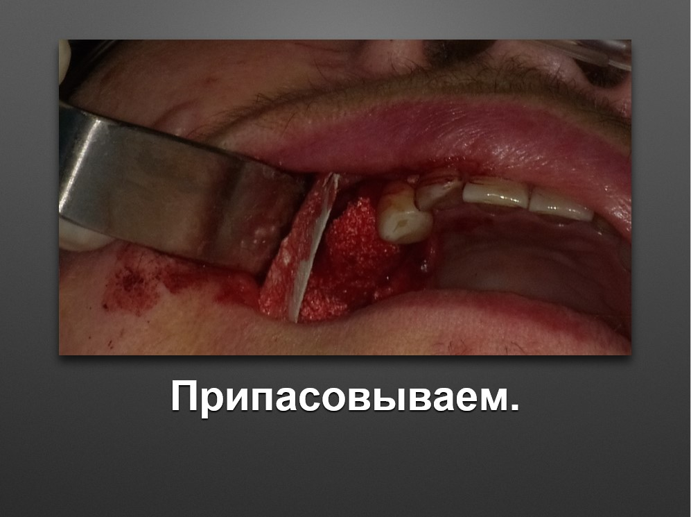Screenshot_55